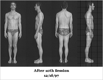 Rolfing After Photos