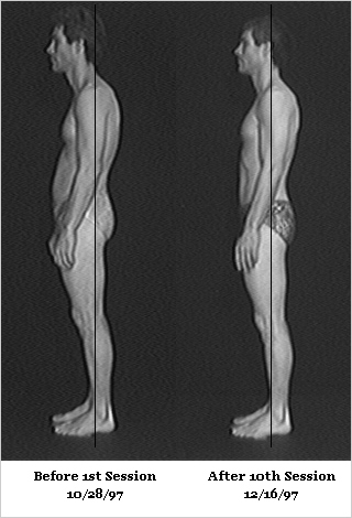 Rolfing Before and After Photos